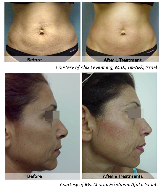 Non Surgical Fat Removal Amp Skin Tightening Allentown