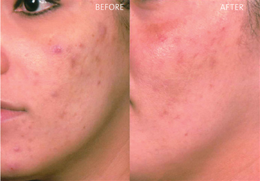VI Peel Acne | Laser Hair Removal Center, Style MedSpa
