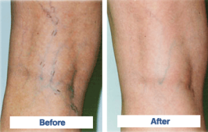 vein-sclerotherapy_before_and_after
