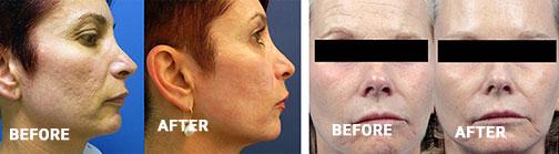 acne scarsw frac
