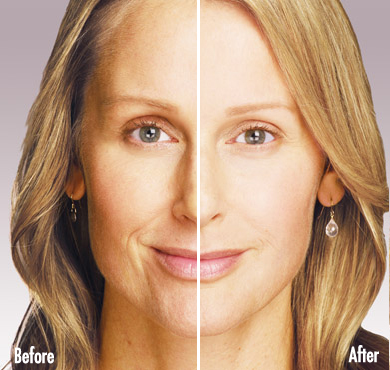 JUVÉDERM® injectable jel   Laser Hair Removal Center, Style MedSpa