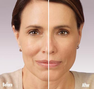 JUVÉDERM® injectable jel | Laser Hair Removal Center, Style MedSpa