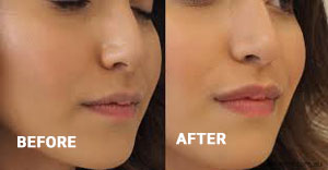 Image result for botox 11