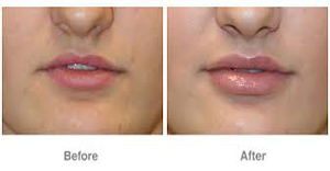 Image result for radiesse before and after
