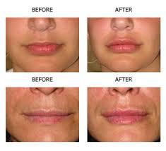 lipsss-1.jpg