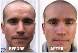 Image result for radiesse cheeks before and after