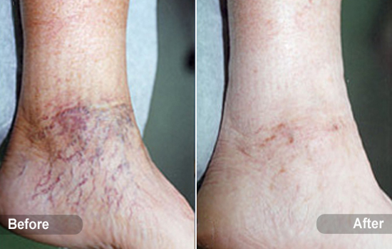 spider-vein-ankle