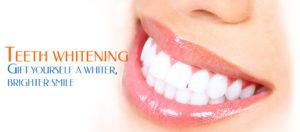teeth-whiting-