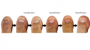 toe nail fungus, nail fungus | Laser Hair Removal Center, Style ...