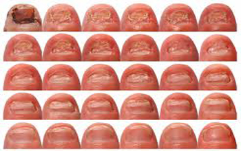 toe-nail-fungus-multi-pics