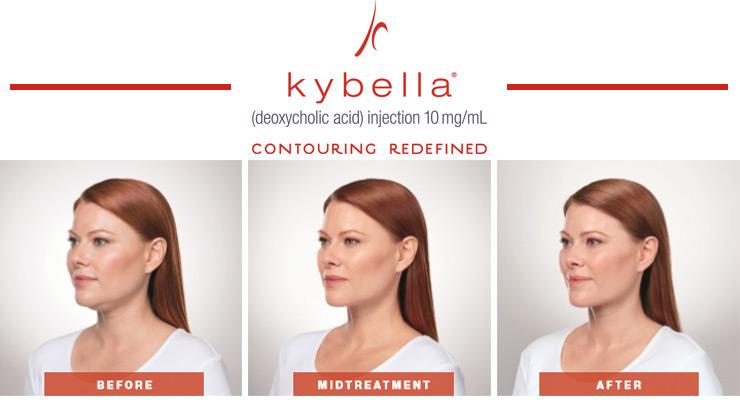 kybella-treatment-banner-1